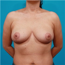 Breast Lift After Photo by Michael Bogdan, MD, MBA, FACS; Southlake, TX - Case 31947