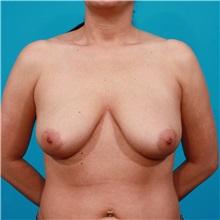 Breast Lift Before Photo by Michael Bogdan, MD, MBA, FACS; Southlake, TX - Case 31947