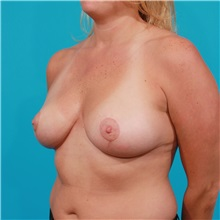 Breast Lift After Photo by Michael Bogdan, MD, MBA, FACS; Southlake, TX - Case 31948