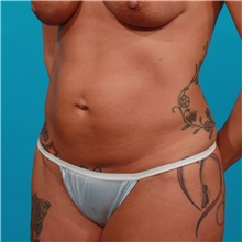 Tummy Tuck Before Photo by Michael Bogdan, MD, MBA, FACS; Southlake, TX - Case 31949