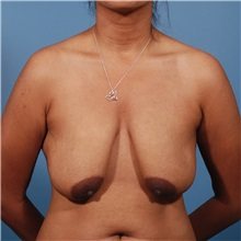 Breast Lift Before Photo by Michael Bogdan, MD, MBA, FACS; Southlake, TX - Case 31950