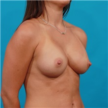 Breast Augmentation After Photo by Michael Bogdan, MD, MBA, FACS; Southlake, TX - Case 31955