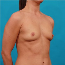 Breast Augmentation Before Photo by Michael Bogdan, MD, MBA, FACS; Southlake, TX - Case 31955