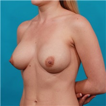 Breast Augmentation After Photo by Michael Bogdan, MD, MBA, FACS; Southlake, TX - Case 31957