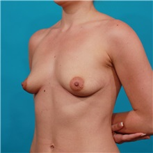 Breast Augmentation Before Photo by Michael Bogdan, MD, MBA, FACS; Southlake, TX - Case 31957