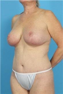 Tummy Tuck After Photo by Michael Bogdan, MD, MBA, FACS; Southlake, TX - Case 31959