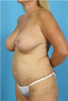 Tummy Tuck Before Photo by Michael Bogdan, MD, MBA, FACS; Southlake, TX - Case 31959