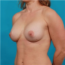 Breast Augmentation After Photo by Michael Bogdan, MD, MBA, FACS; Southlake, TX - Case 31961