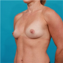 Breast Augmentation Before Photo by Michael Bogdan, MD, MBA, FACS; Southlake, TX - Case 31961