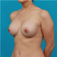 Breast Augmentation After Photo by Michael Bogdan, MD, MBA, FACS; Grapevine, TX - Case 31964