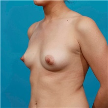 Breast Augmentation Before Photo by Michael Bogdan, MD, MBA, FACS; Grapevine, TX - Case 31964