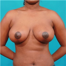 Breast Reduction After Photo by Michael Bogdan, MD, MBA, FACS; Southlake, TX - Case 31970