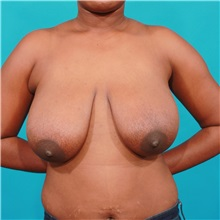 Breast Reduction Before Photo by Michael Bogdan, MD, MBA, FACS; Southlake, TX - Case 31970