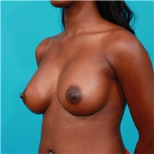 Breast Augmentation After Photo by Michael Bogdan, MD, MBA, FACS; Southlake, TX - Case 31971