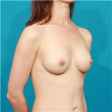 Breast Augmentation After Photo by Michael Bogdan, MD, MBA, FACS; Southlake, TX - Case 31972
