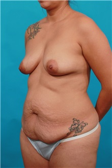 Tummy Tuck Before Photo by Michael Bogdan, MD, MBA, FACS; Southlake, TX - Case 31975