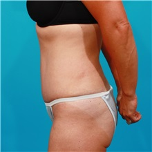 Tummy Tuck After Photo by Michael Bogdan, MD, MBA, FACS; Southlake, TX - Case 31978