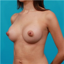 Breast Augmentation After Photo by Michael Bogdan, MD, MBA, FACS; Grapevine, TX - Case 31980