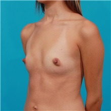 Breast Augmentation Before Photo by Michael Bogdan, MD, MBA, FACS; Grapevine, TX - Case 31980