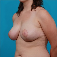 Breast Lift After Photo by Michael Bogdan, MD, MBA, FACS; Southlake, TX - Case 31984