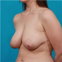 Breast Lift Before Photo by Michael Bogdan, MD, MBA, FACS; Southlake, TX - Case 31984