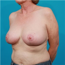 Breast Reduction After Photo by Michael Bogdan, MD, MBA, FACS; Southlake, TX - Case 31989