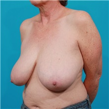 Breast Reduction Before Photo by Michael Bogdan, MD, MBA, FACS; Southlake, TX - Case 31989