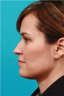 Eyelid Surgery After Photo by Michael Bogdan, MD, MBA, FACS; Southlake, TX - Case 31990