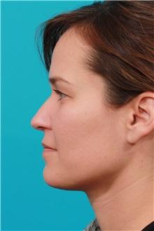 Eyelid Surgery Before Photo by Michael Bogdan, MD, MBA, FACS; Southlake, TX - Case 31990