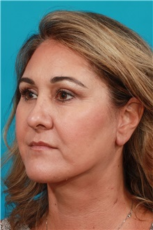 Facelift After Photo by Michael Bogdan, MD, MBA, FACS; Southlake, TX - Case 31992