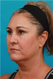 Facelift Before Photo by Michael Bogdan, MD, MBA, FACS; Southlake, TX - Case 31992