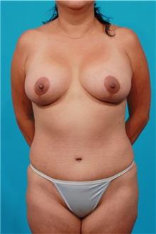 Tummy Tuck After Photo by Michael Bogdan, MD, MBA, FACS; Southlake, TX - Case 31994