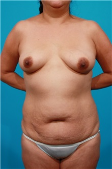 Tummy Tuck Before Photo by Michael Bogdan, MD, MBA, FACS; Southlake, TX - Case 31994
