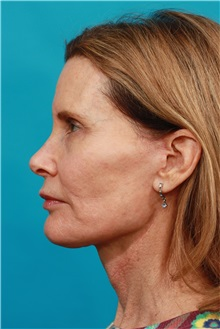 Facelift After Photo by Michael Bogdan, MD, MBA, FACS; Southlake, TX - Case 31995