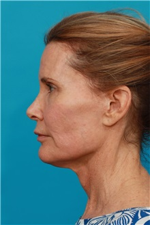 Facelift Before Photo by Michael Bogdan, MD, MBA, FACS; Southlake, TX - Case 31995