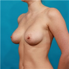 Breast Augmentation After Photo by Michael Bogdan, MD, MBA, FACS; Southlake, TX - Case 31998