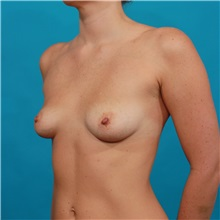 Breast Augmentation Before Photo by Michael Bogdan, MD, MBA, FACS; Southlake, TX - Case 31998