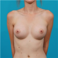 Breast Augmentation After Photo by Michael Bogdan, MD, MBA, FACS; Southlake, TX - Case 32005