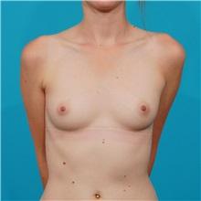 Breast Augmentation Before Photo by Michael Bogdan, MD, MBA, FACS; Southlake, TX - Case 32005