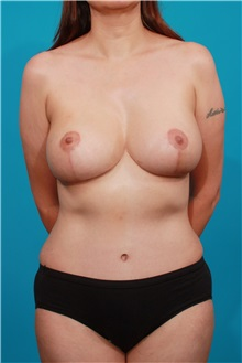 Breast Lift After Photo by Michael Bogdan, MD, MBA, FACS; Southlake, TX - Case 32012