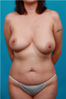 Breast Lift Before Photo by Michael Bogdan, MD, MBA, FACS; Grapevine, TX - Case 32012