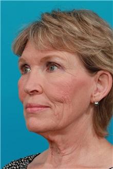 Facelift Before Photo by Michael Bogdan, MD, MBA, FACS; Southlake, TX - Case 32013