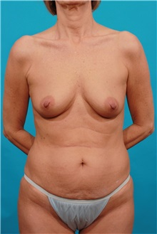 Tummy Tuck Before Photo by Michael Bogdan, MD, MBA, FACS; Southlake, TX - Case 32018