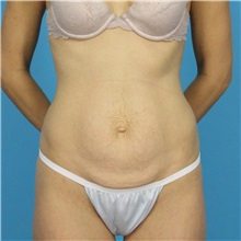 Tummy Tuck Before Photo by Michael Bogdan, MD, MBA, FACS; Southlake, TX - Case 32020