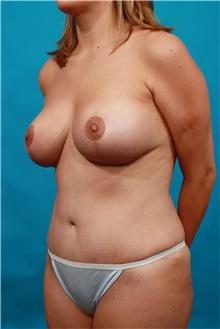 Tummy Tuck After Photo by Michael Bogdan, MD, MBA, FACS; Southlake, TX - Case 32022