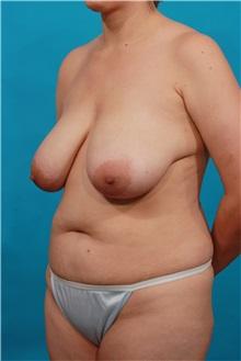 Tummy Tuck Before Photo by Michael Bogdan, MD, MBA, FACS; Southlake, TX - Case 32022