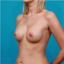 Breast Augmentation After Photo by Michael Bogdan, MD, MBA, FACS; Southlake, TX - Case 32023