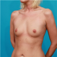 Breast Augmentation Before Photo by Michael Bogdan, MD, MBA, FACS; Southlake, TX - Case 32023