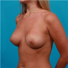 Breast Augmentation After Photo by Michael Bogdan, MD, MBA, FACS; Southlake, TX - Case 32024