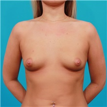 Breast Augmentation Before Photo by Michael Bogdan, MD, MBA, FACS; Southlake, TX - Case 32024